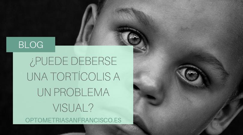¿Puede deberse la tortícolis a un problema visual?